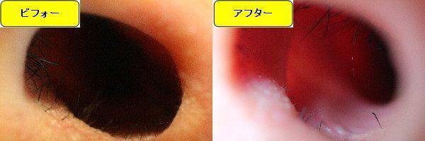 メンズ全身脱毛のクリニックであるメンズリゼで鼻毛脱毛した効果を示す画像 施術前と第5回目照射後の1週間後の比較画像