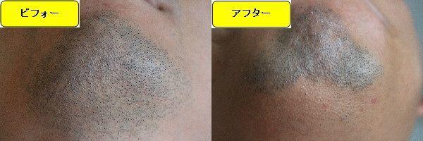 ヒゲ脱毛施術前と第5回目照射1ヶ月後の顎下の比較画像