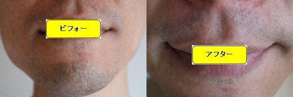 ヒゲ脱毛施術前と第6回目照射後の正面側の比較画像