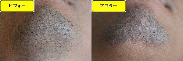 ヒゲ脱毛施術前と第6回目照射後の顎下の比較画像