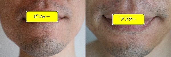 ヒゲ脱毛施術前と第6回目照射1週間後の正面側の比較画像