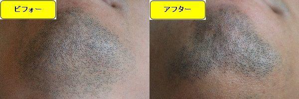 ヒゲ脱毛施術前と第6回目照射1週間後の顎下の比較画像