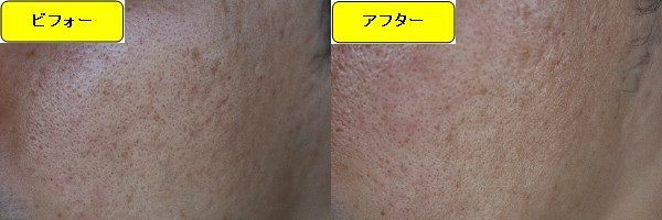 ニキビ跡治療前と第3回目ニキビ跡治療1日後の顔の右側の比較写真