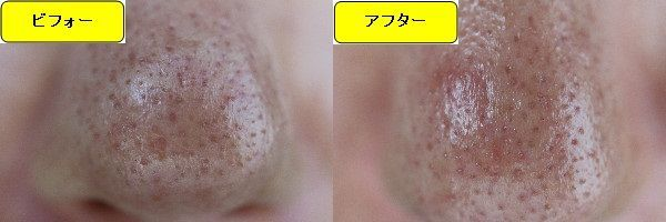 ニキビ跡治療前と第3回目ニキビ跡治療1日後の鼻の比較写真
