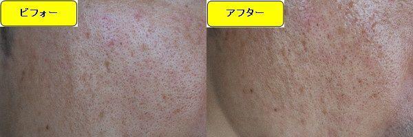 ニキビ跡治療前と第3回目ニキビ跡治療1日後の顔の左側の比較写真