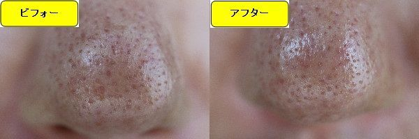 ニキビ跡治療前と第3回目ニキビ跡治療1週間後の鼻の比較写真