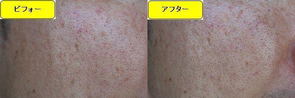 ニキビ跡治療前と第3回目ニキビ跡治療1週間後の顔の左側の比較写真