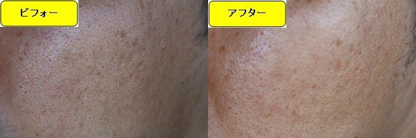 ニキビ跡治療前と第3回目ニキビ跡治療1週間後の顔の右側の比較写真
