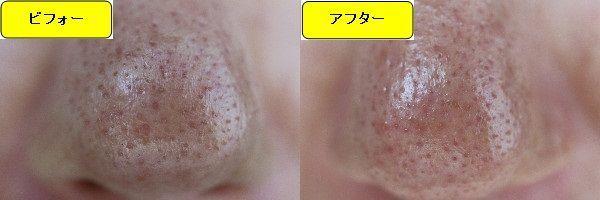ニキビ跡治療前と第4回目ニキビ跡治療1日後の鼻の比較写真