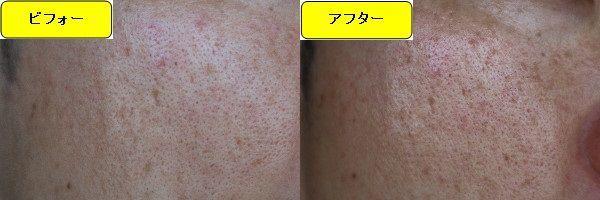 ニキビ跡治療前と第4回目ニキビ跡治療1日後の顔の左側の比較写真