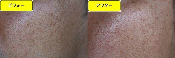 ニキビ跡治療前と第4回目ニキビ跡治療1日後の顔の右側の比較写真