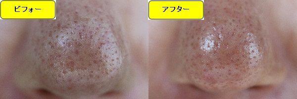 ニキビ跡治療前と第4回目ニキビ跡治療1週間後の鼻の比較写真