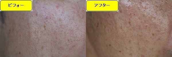 ニキビ跡治療前と第4回目ニキビ跡治療1週間後の顔の左側の比較写真
