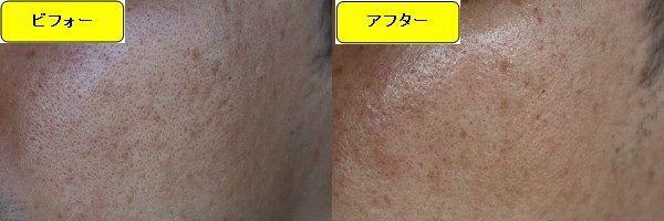 ニキビ跡治療前と第4回目ニキビ跡治療1週間後の顔の右側の比較写真