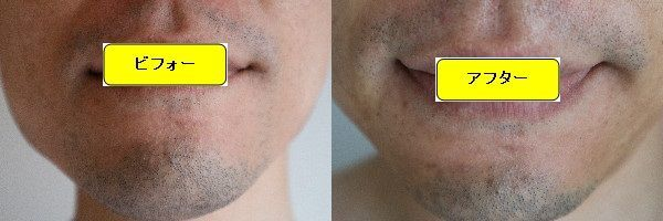 ヒゲ脱毛施術前と第6回目照射1ヶ月後の正面側の比較画像