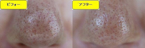 ニキビ跡治療前と第5回目ニキビ跡治療1日後の鼻の比較写真