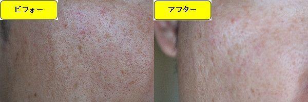 ニキビ跡治療前と第5回目ニキビ跡治療1日後の顔の左側の比較写真