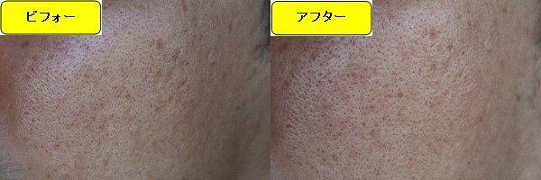 ニキビ跡治療前と第5回目ニキビ跡治療1日後の顔の右側の比較写真