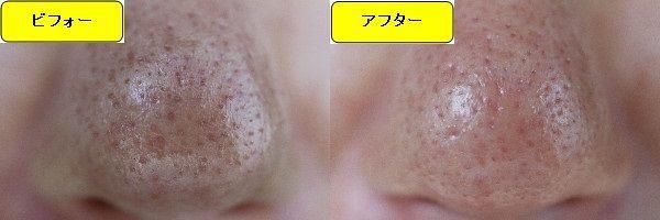 ニキビ跡治療前と第5回目ニキビ跡治療1週間後の鼻の比較写真