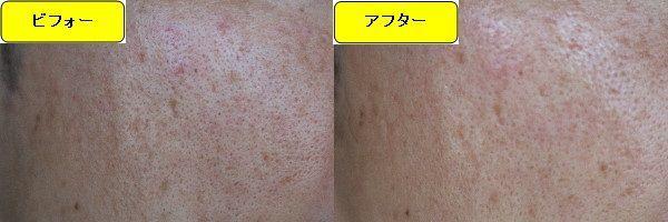 ニキビ跡治療前と第5回目ニキビ跡治療1週間後の顔の左側の比較写真