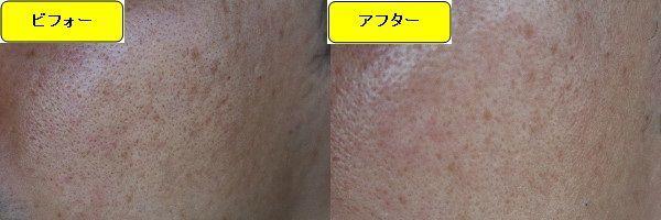 ニキビ跡治療前と第5回目ニキビ跡治療1週間後の顔の右側の比較写真