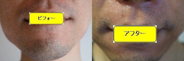 ヒゲ脱毛施術前と第6回目照射1ヶ月後(ヒゲ剃り2日後)の正面側の比較画像