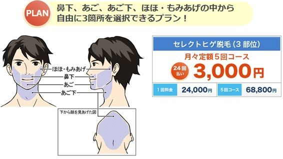 ヒゲ脱毛のクリニックであるメンズリゼのヒゲ脱毛の値段を示す画像1