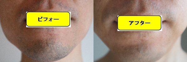 ヒゲ脱毛施術前と第7回目照射後の正面側の比較画像