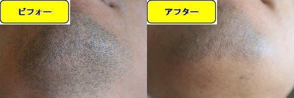 ヒゲ脱毛施術前と第7回目照射後の顎下の比較画像