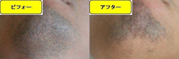 ヒゲ脱毛施術前と第7回目照射1週間後の顎下の比較画像