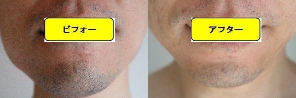 ヒゲ脱毛施術前と第7回目照射1週間後の正面側の比較画像