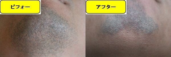 ヒゲ脱毛施術前と第7回目照射1ヶ月後の顎下の比較画像