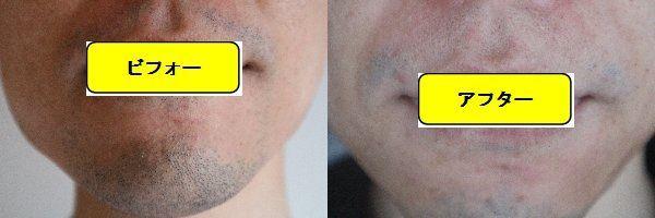 ヒゲ脱毛施術前と第7回目照射1ヶ月後の正面側の比較画像