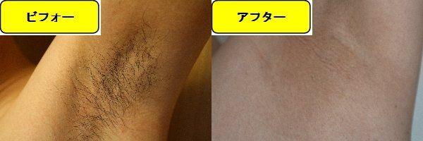 メンズ全身脱毛のクリニックである湘南美容クリニックでワキ毛脱毛した効果を示す画像 施術前と第6回目照射後の比較画像