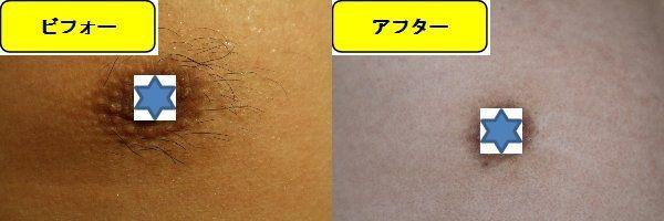 メンズ全身脱毛のクリニックである湘南美容クリニックで乳輪周囲と胸を脱毛した効果を示す画像 施術前と第5回目照射の1日後の比較画像