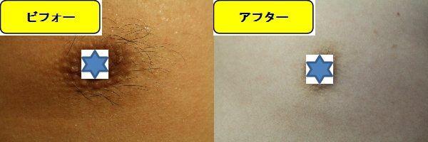 メンズ全身脱毛のクリニックである湘南美容クリニックで乳輪周囲と胸を脱毛した効果を示す画像 施術前と第5回目照射後の1週間後の比較画像