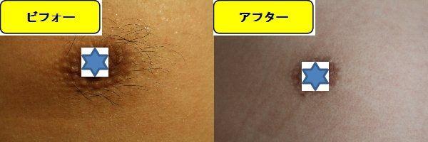 メンズ全身脱毛のクリニックである湘南美容クリニックで乳輪周囲と胸を脱毛した効果を示す画像 施術前と第5回目照射後の1ヶ月後の比較画像
