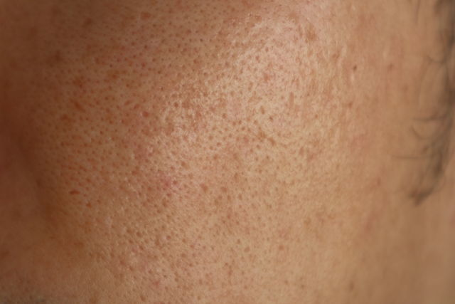 毛穴の開きとニキビ跡の治療であるケミカルピーリング治療前の顔の右側の写真