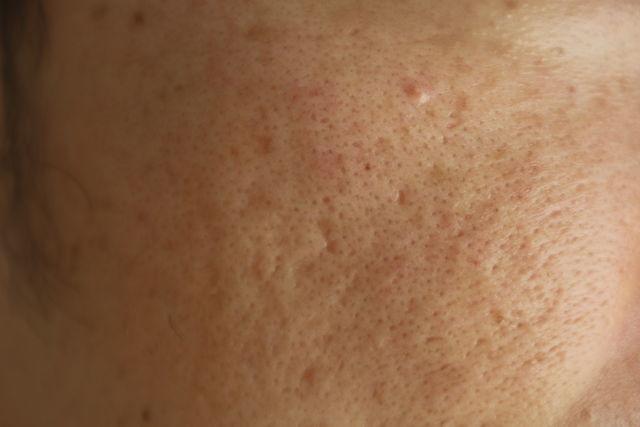 毛穴の開きとニキビ跡の治療であるケミカルピーリング治療前の顔の左側の写真