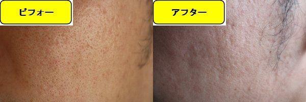 毛穴の開きとニキビ跡の治療であるケミカルピーリング治療前の顔の右側の写真と第1回目治療1日後の顔の右側の写真