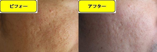 毛穴の開きとニキビ跡の治療であるケミカルピーリング治療前の顔の左側の写真と第1回目治療1日後の顔の左側の写真