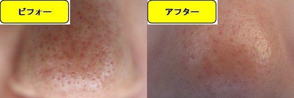 毛穴の開きとニキビ跡の治療であるケミカルピーリング治療前の鼻の写真と第1回目治療1日後の鼻の写真