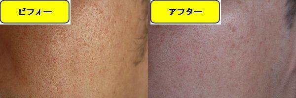 毛穴の開きとニキビ跡の治療であるケミカルピーリング治療前の顔の右側の写真と第1回目治療1週間後の顔の右側の写真