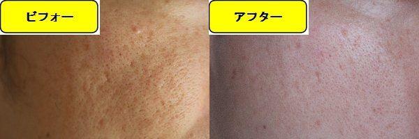 毛穴の開きとニキビ跡の治療であるケミカルピーリング治療前の顔の右側の写真と第1回目治療1週間後の顔の左側の写真