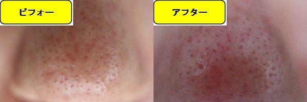 毛穴の開きとニキビ跡の治療であるケミカルピーリング治療前の鼻の写真と第1回目治療1週間後の鼻の写真