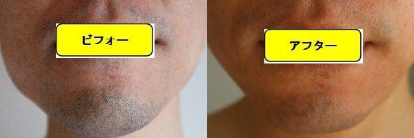 ヒゲ脱毛施術前の顔の正面側の写真とゴリラクリニックでヒゲ脱毛した第8回目照射1日後の顔の正面側の写真の比較画像