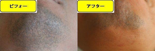 ヒゲ脱毛施術前の顎下の写真とゴリラクリニックでヒゲ脱毛した第8回目照射1日後の顎下の写真の比較画像