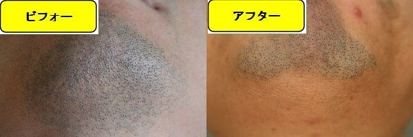 ヒゲ脱毛施術前の顎下の写真とゴリラクリニックでヒゲ脱毛した第8回目照射1週間後の顎下の写真の比較画像