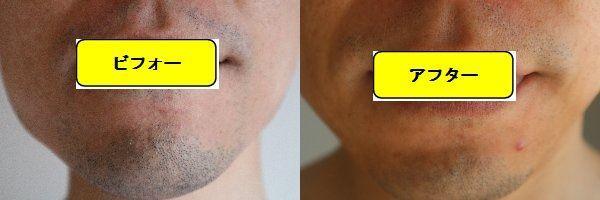 ヒゲ脱毛施術前の顔の正面側の写真とゴリラクリニックでヒゲ脱毛した第8回目照射1週間後の顔の正面側の写真の比較画像