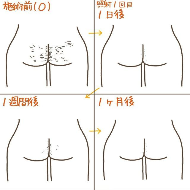 The before and after photos of pubic hair removal. O line. First time of pubic hair removal.